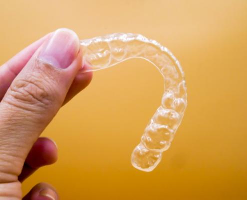 como utilizar la ortodoncia invisible