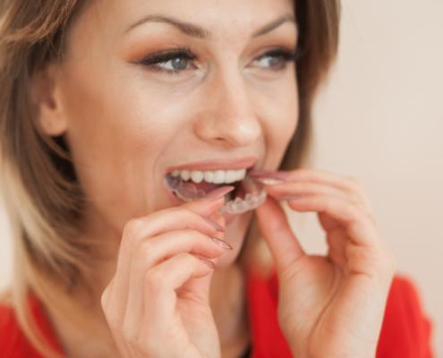 Ortodoncia invisible en SmySecret