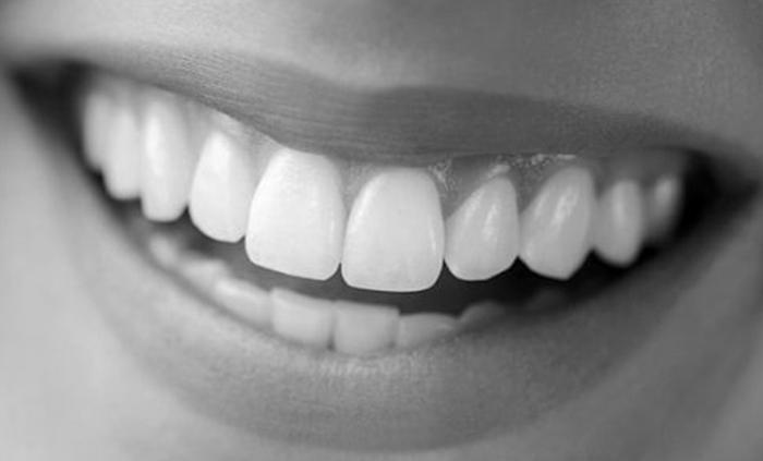 dientes blancos hollywood