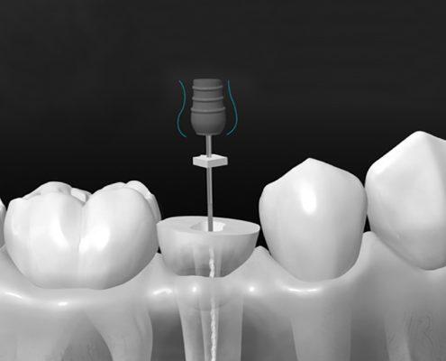 endodoncia, qué es