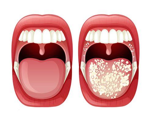 candidasis oral
