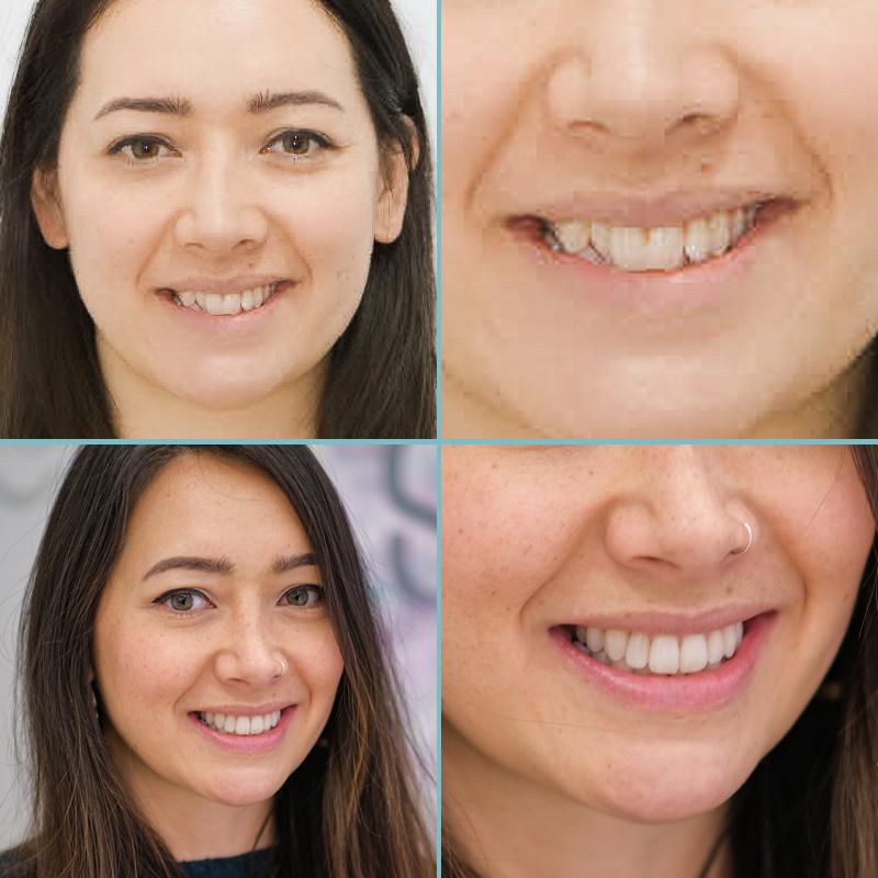 caso real ortodoncia con ataches