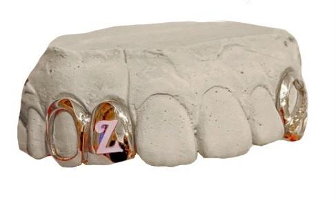 grillz sujeto a un molde de dentadura