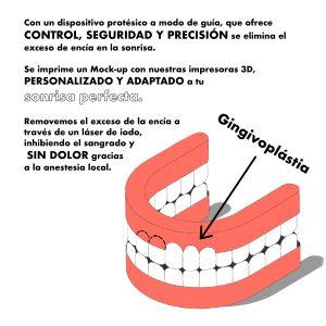 imagen con la descripcion de una gingivoplastia